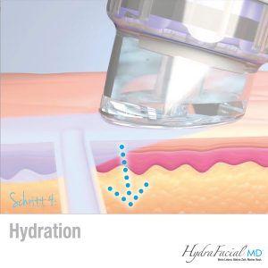 HydraFacial Behandlung Frankfurt Schritt 4